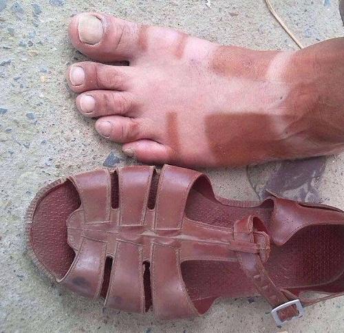 Hậu quả của việc mang giày hở.