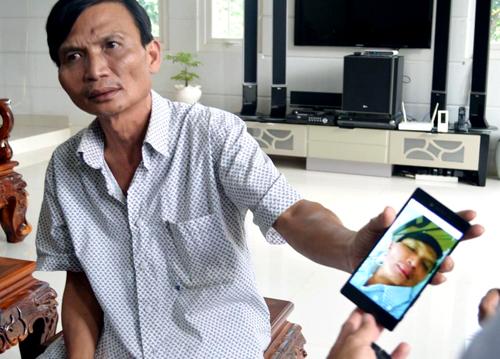 Ông Hưng đưa hình ảnh của mình lúc bị đánh bầm mặt. Ảnh: Kh. Uyên