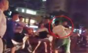 Thanh niên bị đánh thừa sống thiếu chết vì hành hung xe ôm