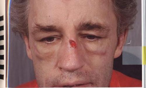 Hồ sơ về vụ bạo hành của McNicholl. Ảnh: Metro.