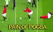Pogba lăn lộn trên sân vì bị sút đúng chỗ hiểm