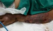 Nam thanh niên tử vong nghi do nhiễm liên cầu lợn