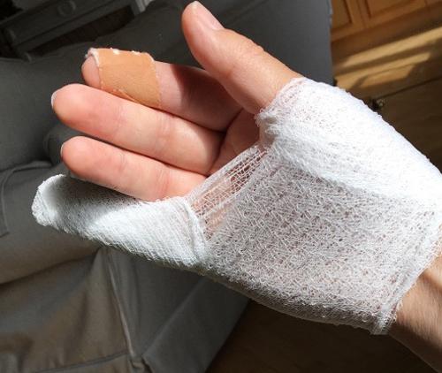 Bàn tay được bác sĩ băng bó của đại sứ Anh tại Áo. Ảnh: blogs.fco.gov.uk.